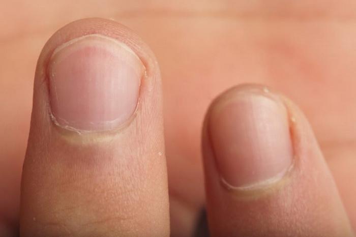 Грызть ногти - пагубная привычка, которая разрушает передние зубы.