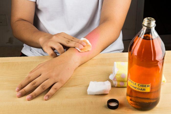 Оптимальное решение частой проблемы кроется в бутылке яблочного уксуса. /Фото: i.pinimg.com