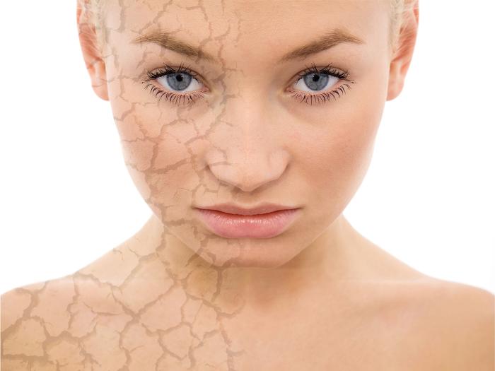 Нельзя пренебрегать качественным и регулярным увлажнением кожи. /Фото: maxi-mag.fr