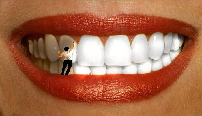 Голливудская улыбка еще никому не вредила. /Фото: expertdent.net