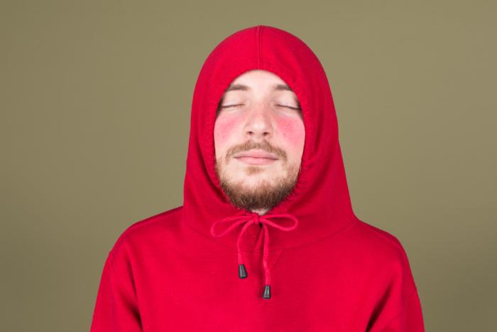 Розовые щечки бывают не только от стыда или стеснения. /Фото: timedotcom.files.wordpress.com