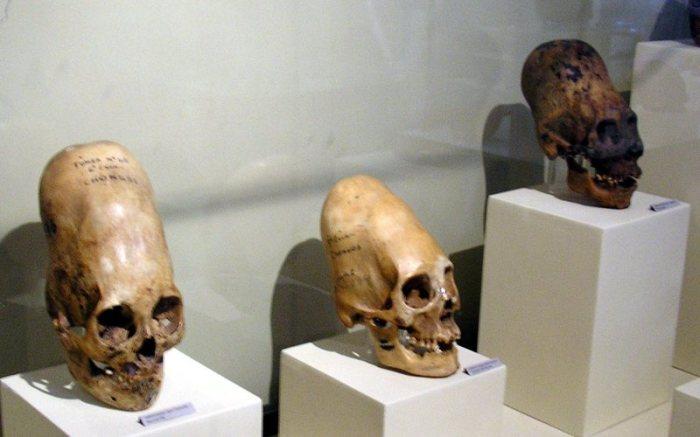 Древние майя практиковали искусственное удлинение черепа. /Фото: assets.atlasobscura.com
