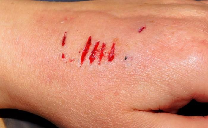 Сахарная терапия ускоряет заживление ран. /Фото: wastungegen.org