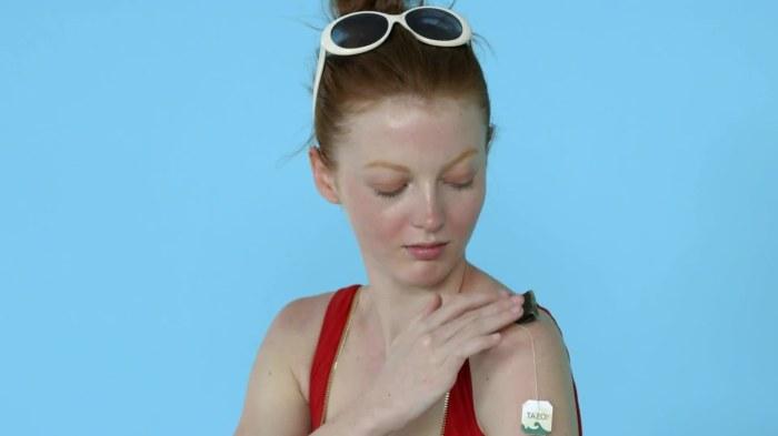 Чай уменьшит боль от солнечных ожогов. /Фото: media.allure.com