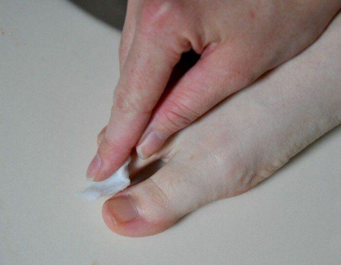 Отличное бюджетное и доступное средство, которое поможет избавиться от неприятной болезни. /Фото: kaksekonomit.com