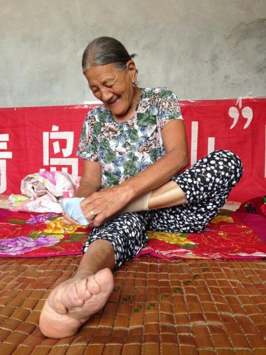 Жертвы китайской красоты, которые обладают удивительно маленькими ножками. /Фото: interesnoznat.com
