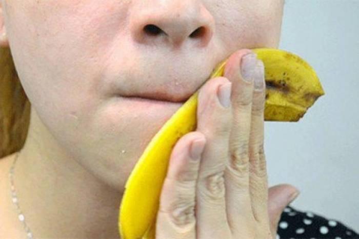 Банановая кожура поможет при синяках и царапинах. /Фото: i.ytimg.com