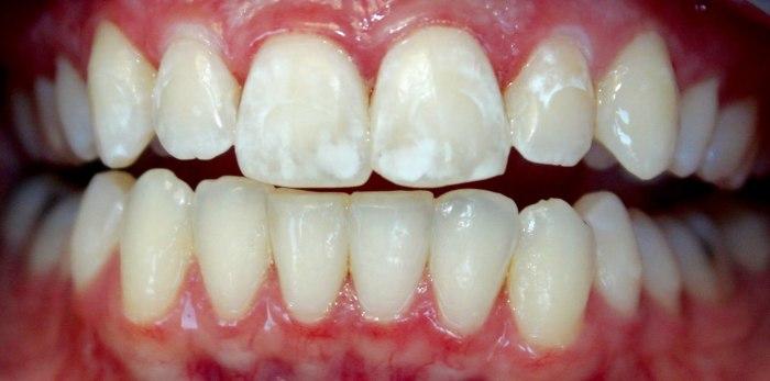 Посещать стоматолога рекомендуется не реже 1 раза в полгода. /Фото: stopcavity.com
