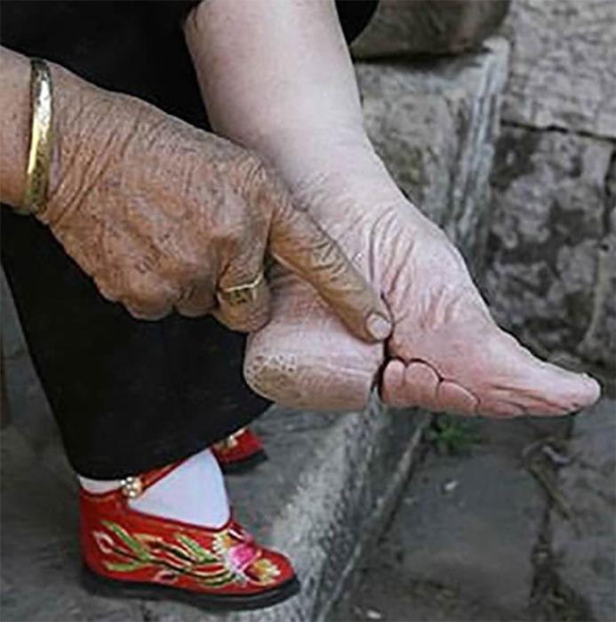 Мнимая красота ради высокого статуса. /Фото: nastroy.net