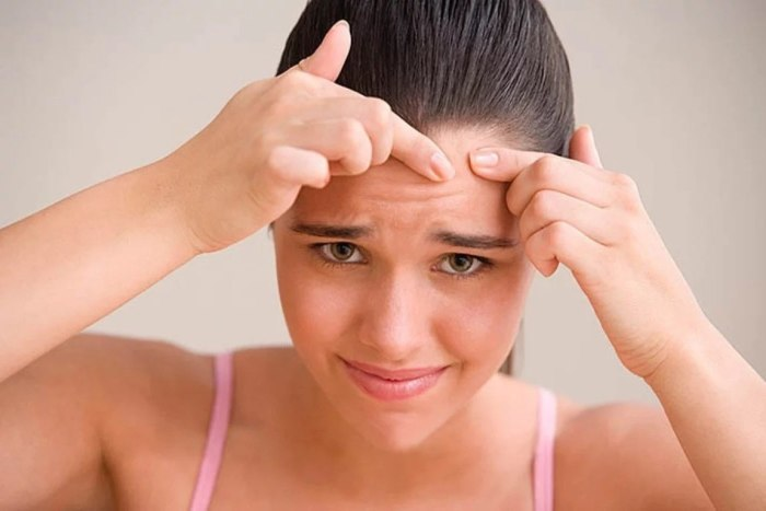 Как бы ни чесались руки, давить нельзя, помиловать. /Фото: netstorage-nur.akamaized.net
