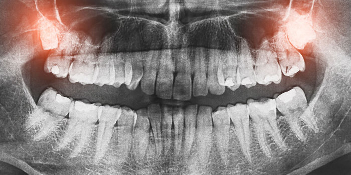 Непрорезавшиеся зубы мудрости. /Фото: njcosa.com