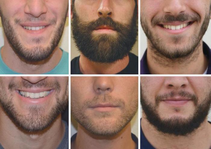 Не везде рады мужчинам с повышенной волосяной активностью на лице. /Фото: cluecho.com
