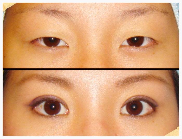 Некоторым корейцам очень хочется избавиться от своей специфичной внешности. |Фото: blog.gaijinpot.com.