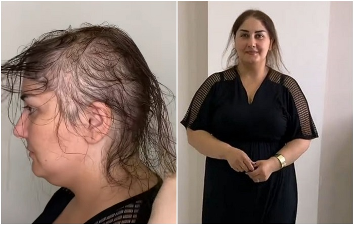 Как женщине скрыть облысение: шикарная прическа из редких волос