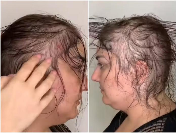 Сложно даже представить, что можно сделать с такими редкими волосами. | Фото: youtube.com/ © Vasily Шевченко.