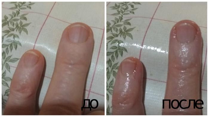Масло придает ногтям ухоженный вид.