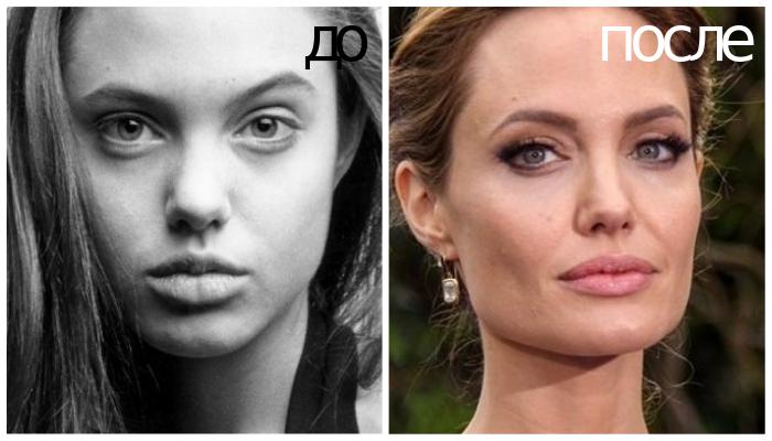 Анджелина Джоли изменила нос и губы.