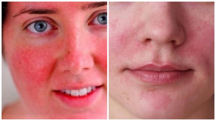 В период обострения холодовой аллергии нанесение крема сразу после прихода с улицы может вызвать резкое покраснение и жжение кожи!
