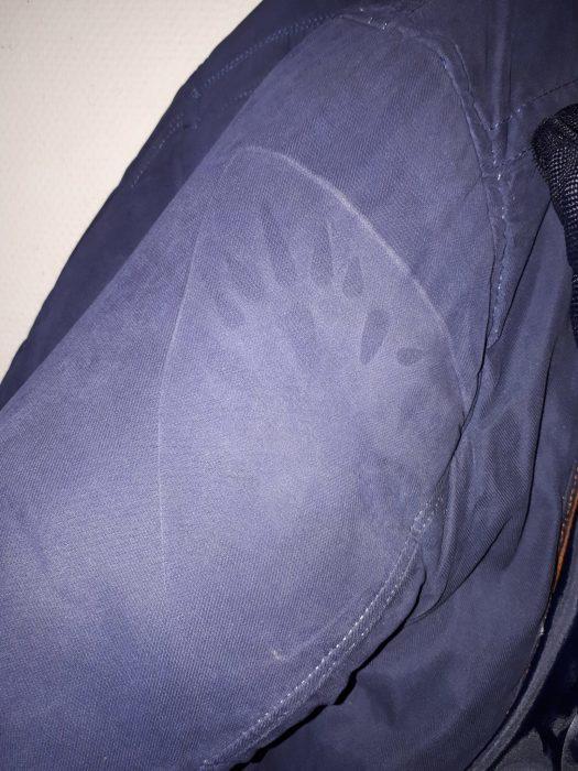 Это не приговор! / Фото: stozabot.com
