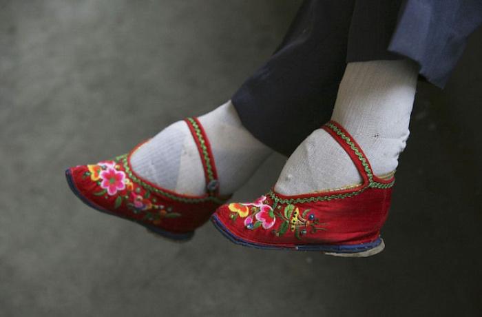 Страшная традиция сотворения ноги-лотос. / Фото: tvbrics.com