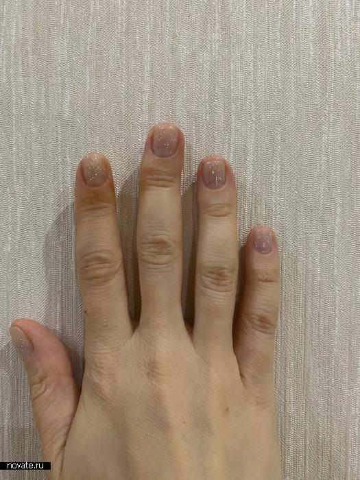 Пальцы могут быть не симметричны.