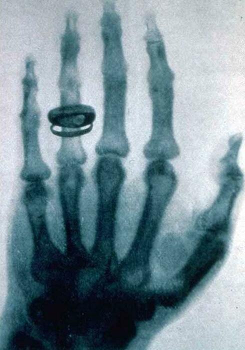 Первый рентгеновский снимок. | Фото: Википедия.