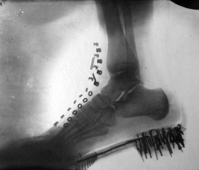 Рентгеновский снимок, сделанный Теслой в конце 1880-х г.