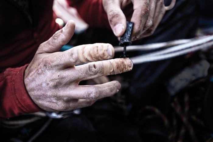 Новое вещество  неожиданно пришлось по душе военным хирургам. /Фото: sektetmira.ru