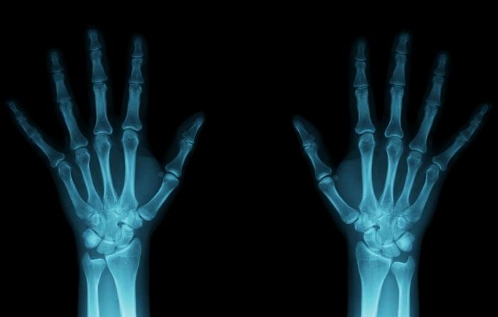 Рентгеновские лучи открыли благодаря любопытству. /Фото: new-science.ru