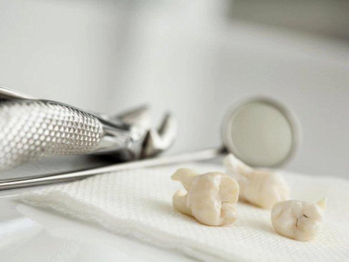 Зубы мудрости нам не нужны, потому они и появляются не у всех. /Фото: nauka.boltai.com
