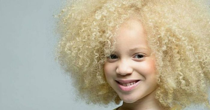 Альбиносы уязвимы к солнечным лучам / Фото: rus.tvnet.lv