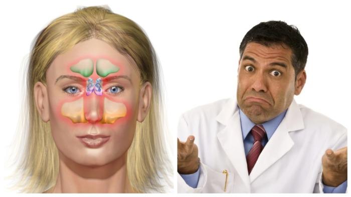 Носовые пазухи доставляют хлопоты не только людям, но и докторам / Фото: dentaltown.com