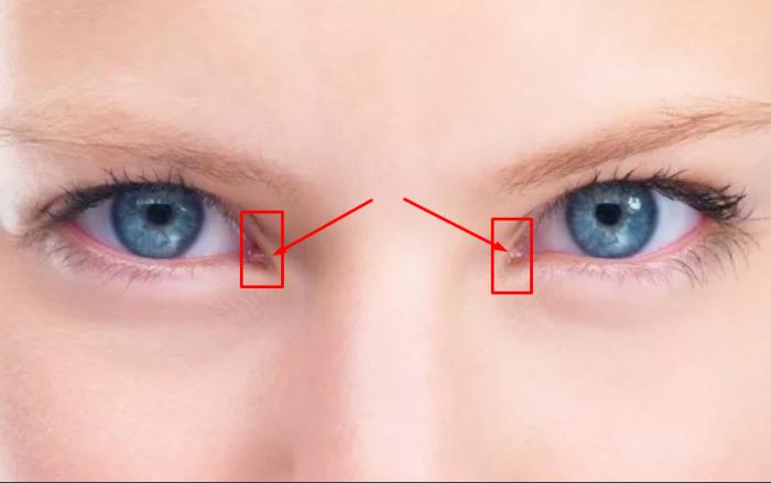 Полулунная складка на глазах защищала предков от ветра и пыли / Фото: astro.clutch.ua