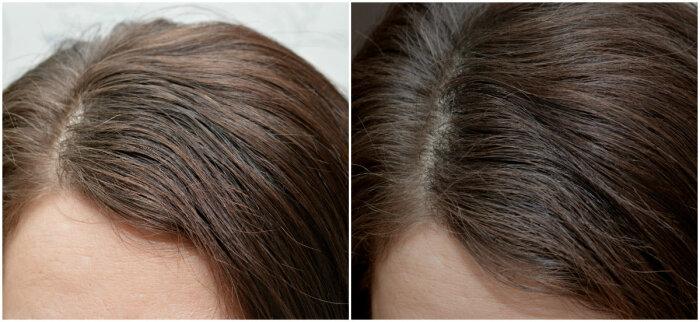 Если средство подобрать правильно, то эффект будет как после мытья головы / Фото: tvoilokony.ru