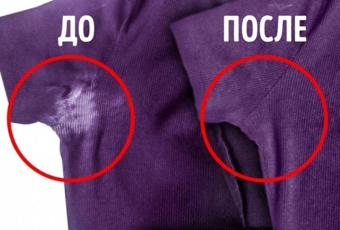 Соблюдение несложных рекомендаций поможет избавиться от пятен / Фото: goodhouse.com.ua