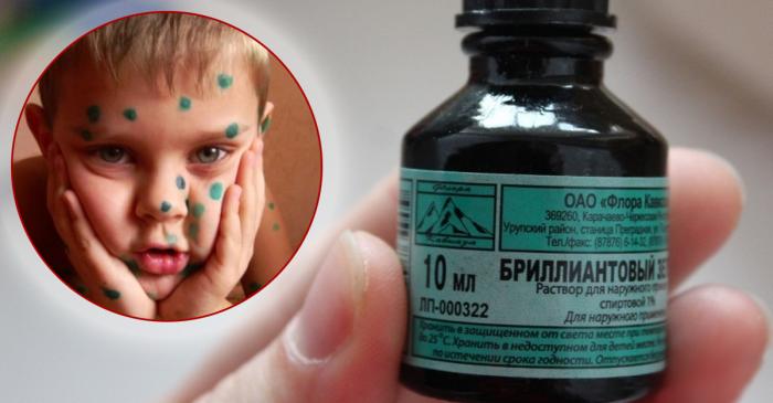 Европейцы не понимают, зачем разрисовывать ребенка зелеными точками / Фото: hraneniegid.ru