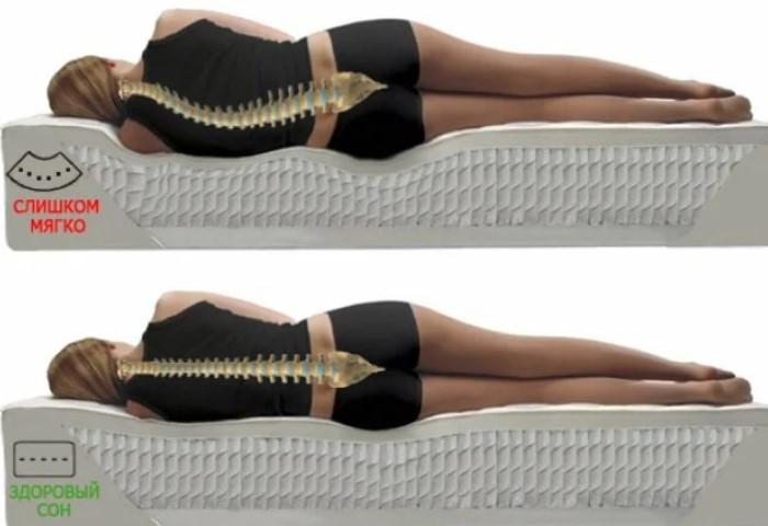 Положение тела на обычном матрасе и ортопедическом / Фото: салонкомфорт.рф