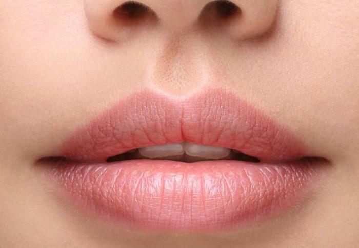 Фильтрум - это желобок, который находится у людей между губами и носом / Фото: joy-pup.com