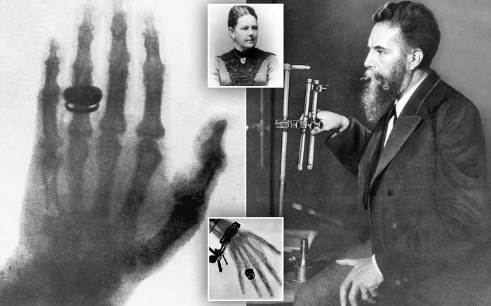 Рентген был поражен, ведь он смог увидеть свою ладонь насквозь, только кости остались непрозрачными / Фото: pbs.twimg.com