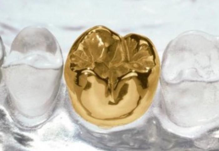 В Древнем Риме из металла изготавливали зубные мосты, а позже начали вставлять золотые зубы / Фото: panram.ru