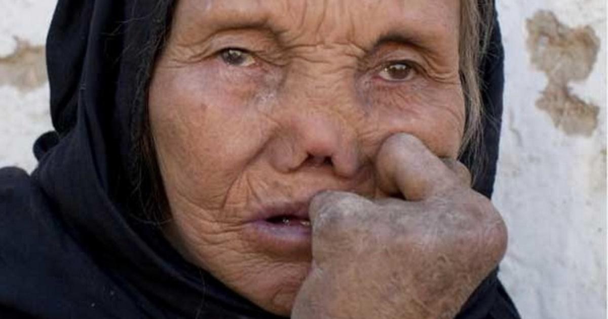 Шок! ТОП-10 самых редких заболеваний в мире