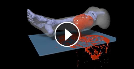 Что на самом деле происходит с ногой при пулевом ранении