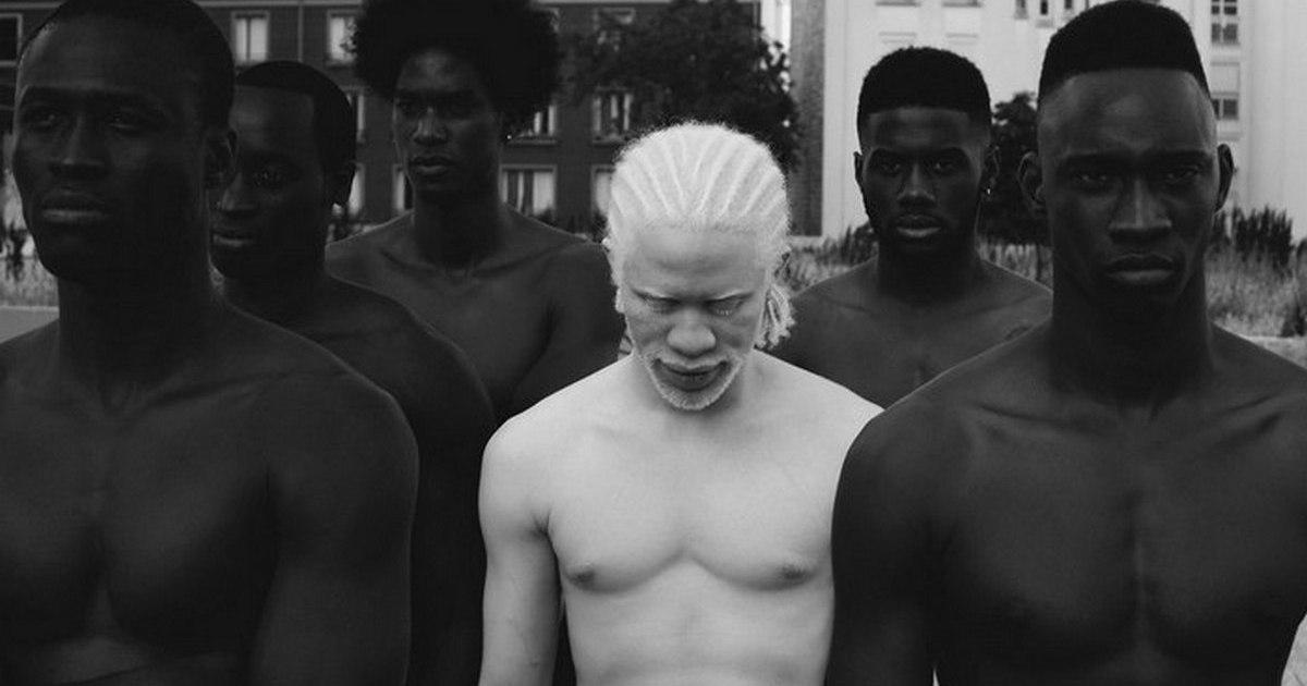 Кто такие альбиносы: признаки. Сколько лет живут альбиносы люди, почему они долго не живут? || Цвет глаз у альбиносов людей