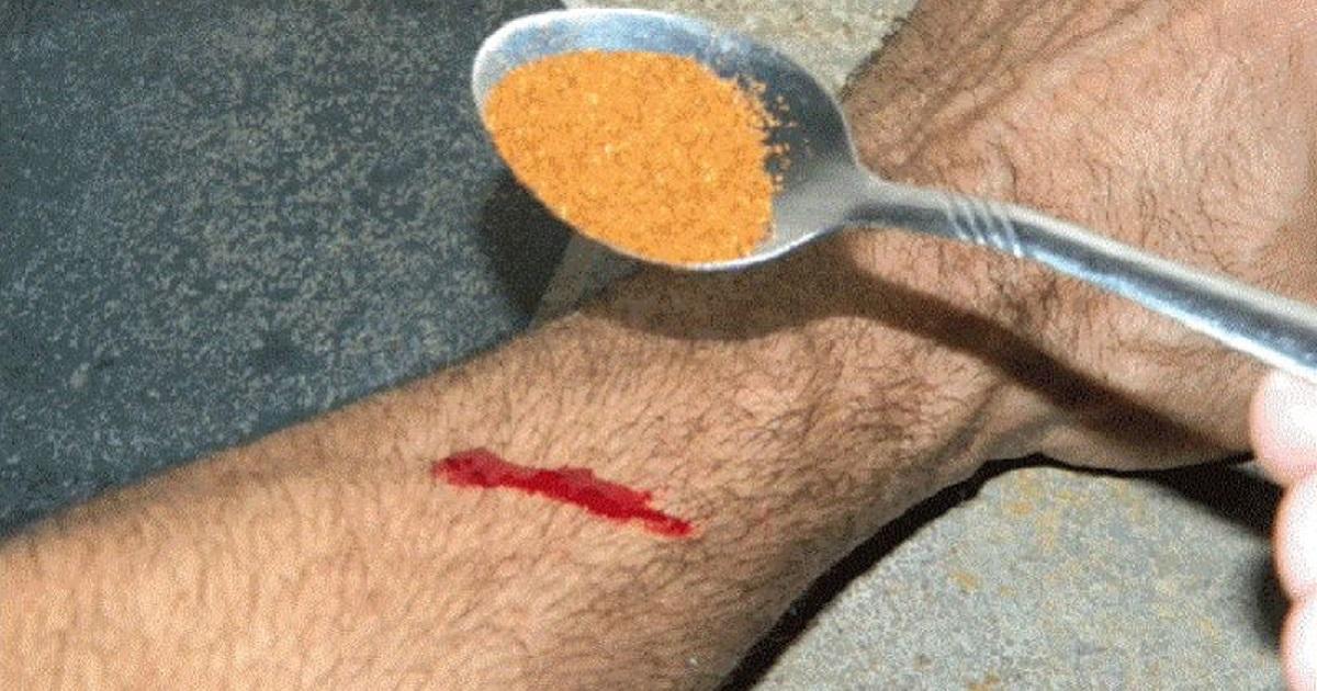 Остановить кровотечение за 10 секунд: какое средство почти мгновенно справится с этим без бинтов и перевязок