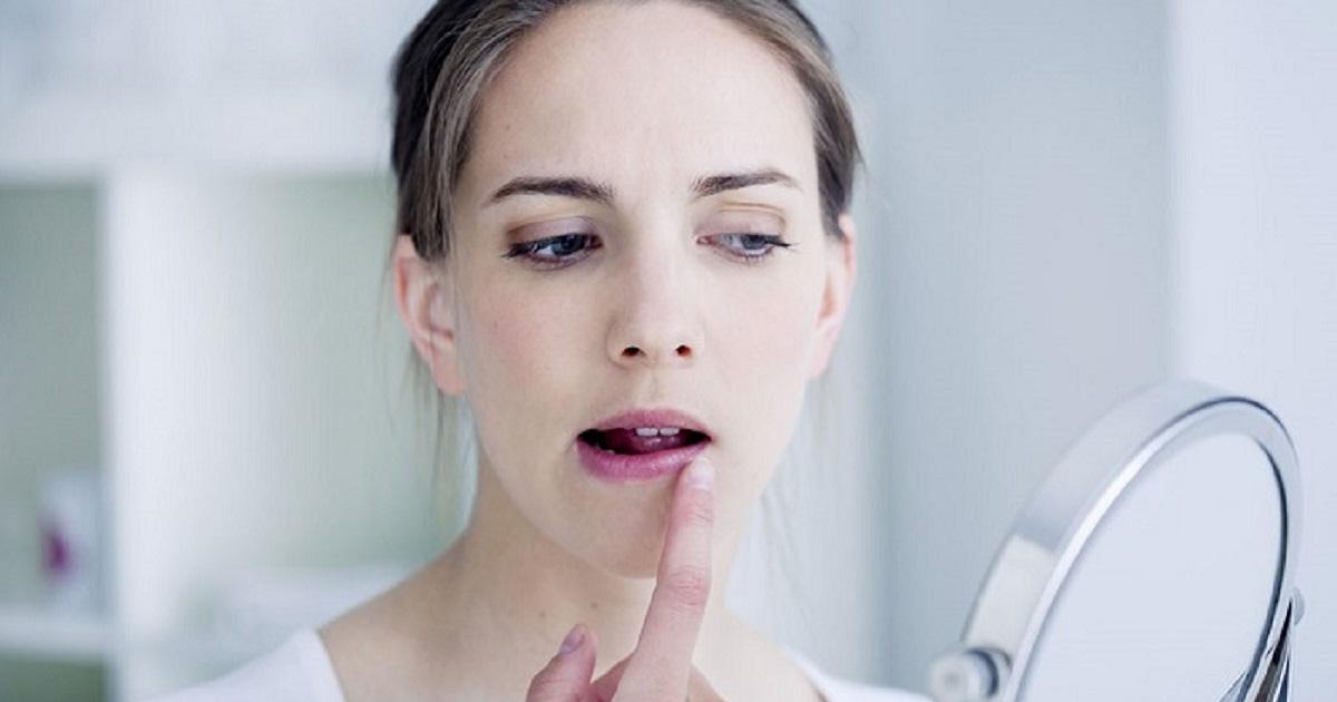 Обветривание губ лечение